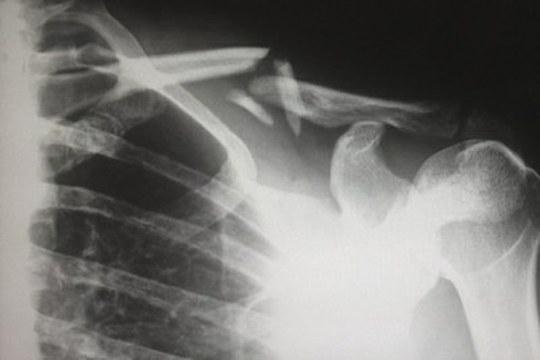 Materiali biomimetici per la rigenerazione delle ossa colpite da metastasi